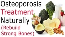 Home Remedies For Osteoporosis Treatment