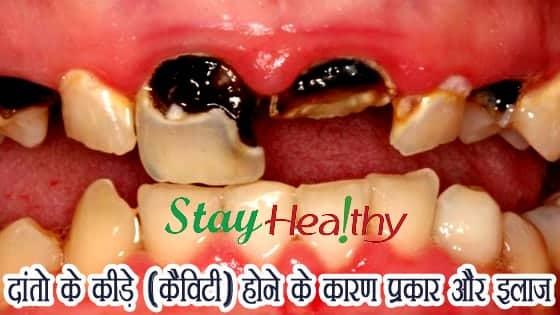दांतो में कीड़े (कैविटी) होने के कारण, प्रकार और इलाज