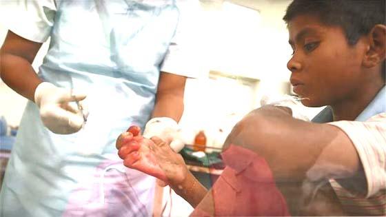 कुष्ठ रोग क्या होता है व इसके उपचार
