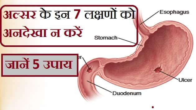 PEPTIC ULCER IN HINDI