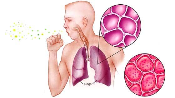 निमोनिया के लक्षण व घरेलू उपचार