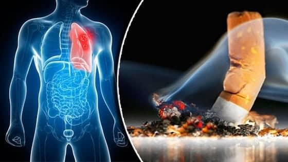धुम्रपान के नुकशान