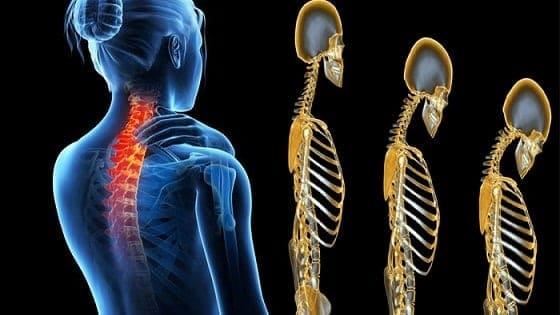 जानिये ऑस्टियोपोरोसिस का आसन आयुर्वेदिक उपचार