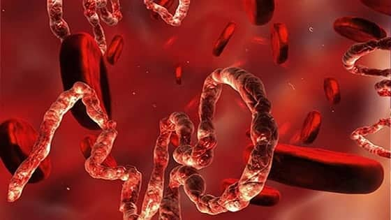 Ebola Virus Treatment In Hindi