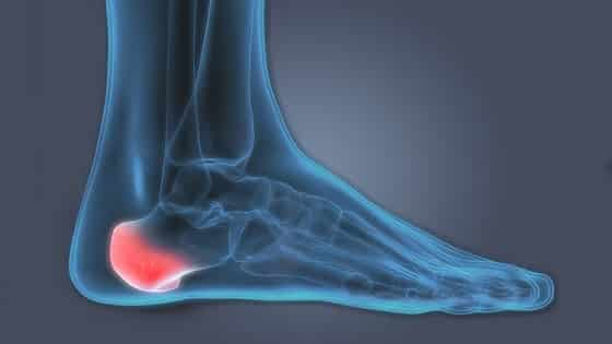 Heel Spur Treatment In Hindi