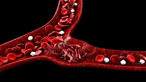 Sickle Cell Disease In Hindi