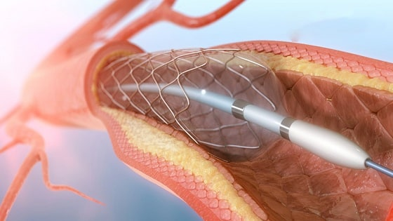 Benefits Of Angioplasty In Hindi