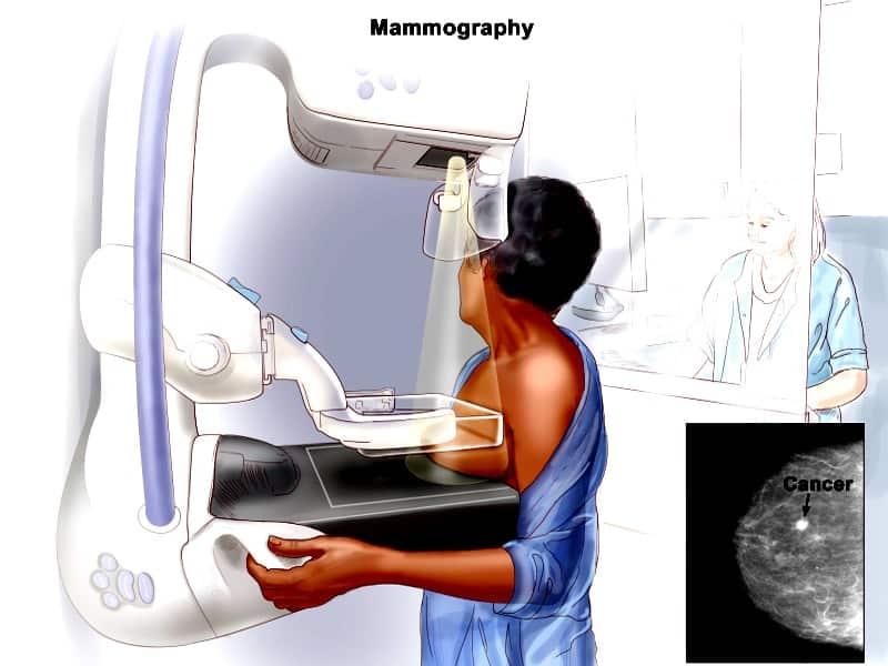 मैमोग्राफी क्या है ? -Mammography In Hindi