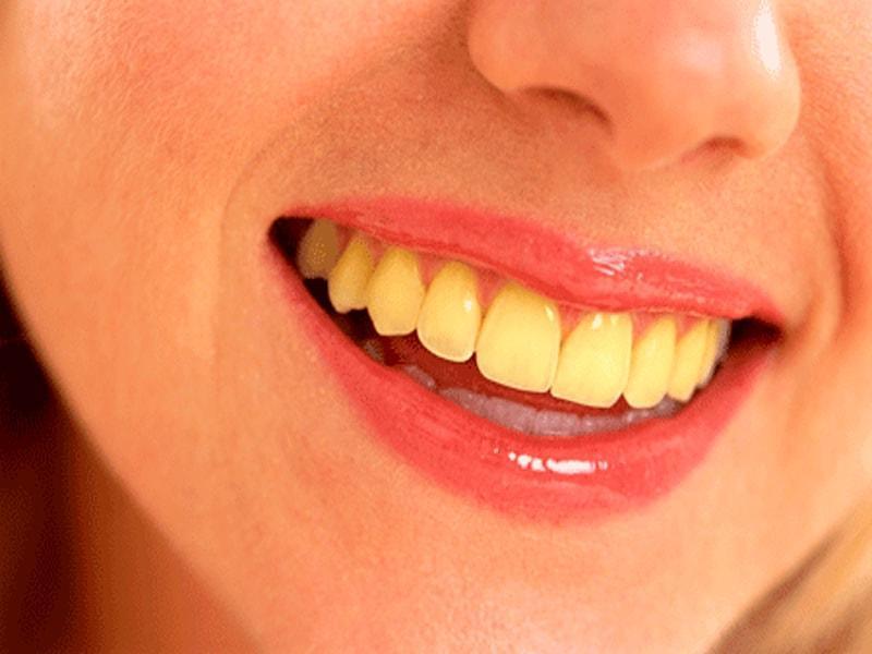 दांतों का पीलापन दूर करने के आसन उपाय - Clean Yellow Teeth In Hindi