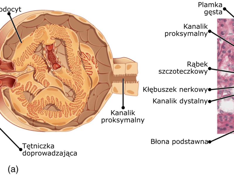 GLOMERULAR DISEASE IN HINDI